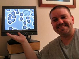 Ryan with his healthy blood cells - Notice the White Blood Cell in the upper right hand corner of the monitor
